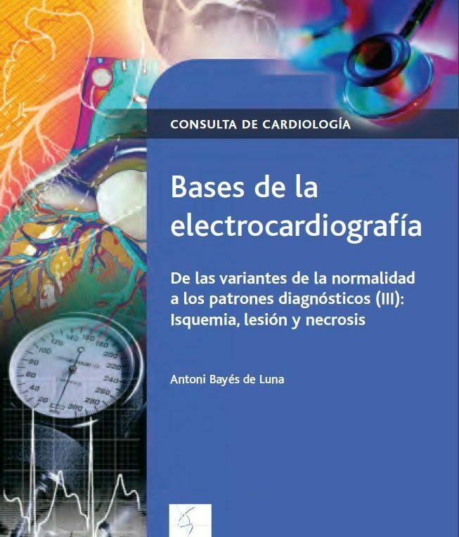 Antoni Bayes de Luna