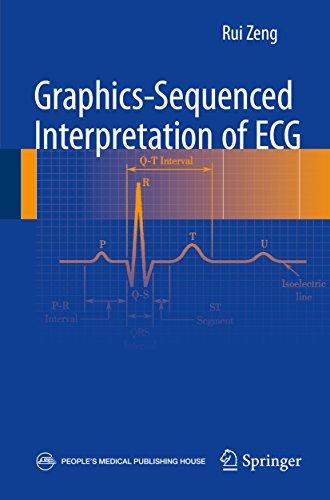 Interpretación Secuenciada de Gráficos de ECG, Rui Zeng